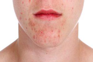Аллергия какие высыпания